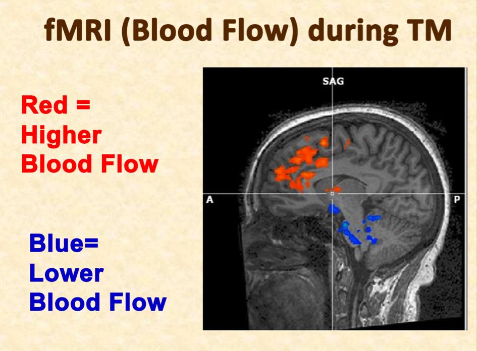 FMRI bloodflow to brain