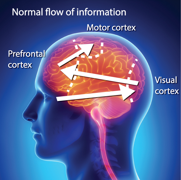 normal-flow